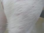 alopecia en el muslo